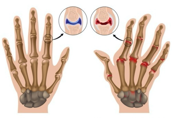 MOST COMMON CAUSES OF SWOLLEN JOINTS AND WHEN YOU SHOULD WORRY ABOUT